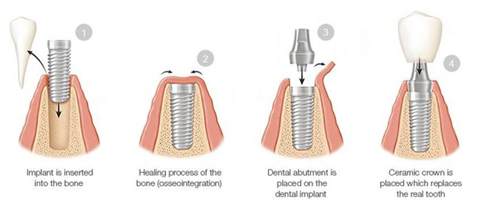 Diagram of four dental implant phases: insertion, healing, abutment, and crown