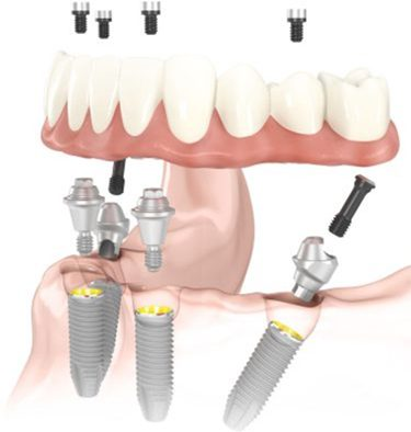 Diagram of All-on-4 dental implants with a denture and screws hovring above implant fixtures in the jawbone