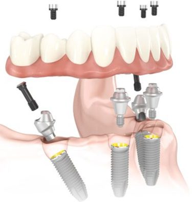 Diagram of All-on-4 fixed dental implants