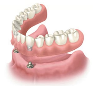 Diagram of a snap-on denture, as a removable implant overdenture, available from Woolf Dental in Bakersfield