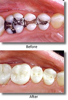 Before-and-after mercury-free dentistry photos of amalgam fillings replaced with composite