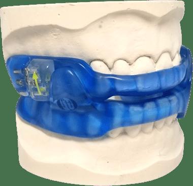 TrueDorsal Oral Appliance for treating sleep apnea